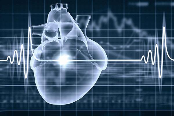 Elektrophysiologische Untersuchung (EPU) und Ablation beim Kardiologen in Koblenz
