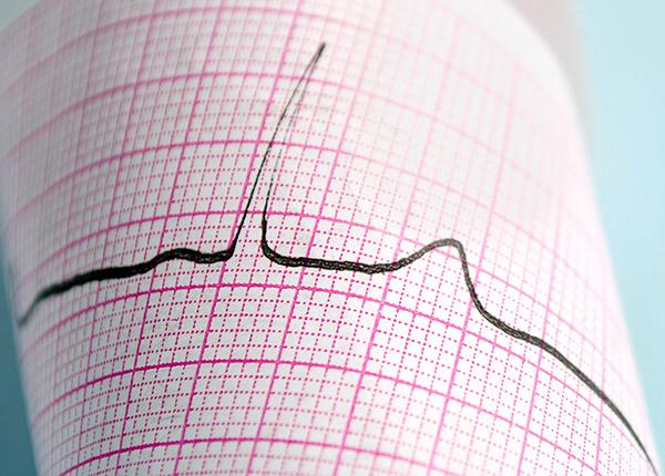 Ruhe-EKG vom Kardiologen in Koblenz